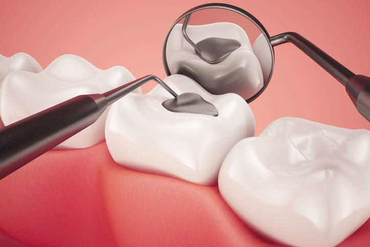 Getting Rid of Cavities Once and For All - Regent Avenue Dental Centre - Dentist Winnipeg