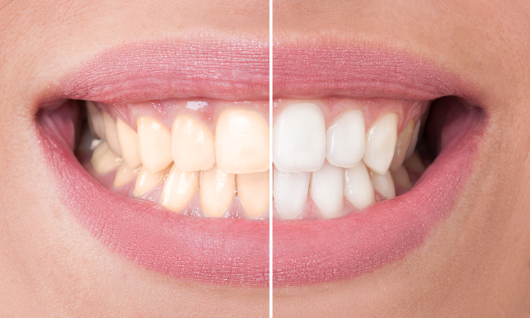 The Safest Way to Whiten Your Teeth - Regent Avenue Dental Centre - Dental Clinic Winnipeg