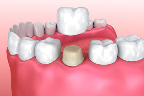 Crowns - Differences between restorative dental treatments crowns and veneers, bridges, and root canals