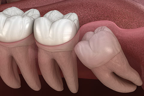 Why you should have your wisdom teeth removed - Wisdom Teeth Removal - Dental Surgery - Winnipeg Dentists