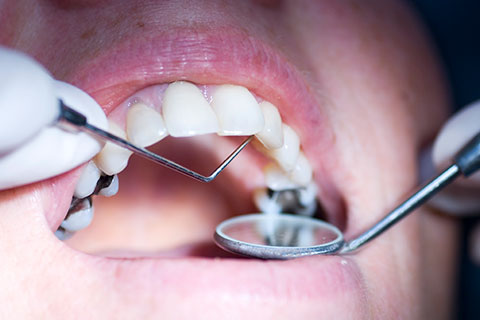 Should you replace your metal fillings with composite fillings? - Composite Fillings - Cosmetic Dentistry - Winnipeg Dentist - Regent Avenue Dental Centre