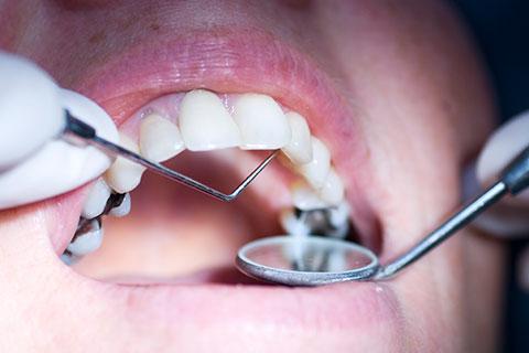 Should you replace your metal fillings with composite fillings? - Composite Fillings - Cosmetic Dentistry - Winnipeg Dentist - Regent Avenue Dental Centre