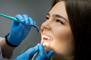 What are cosmetic dental services? - Fillings - Veneers - Teeth Whitening - Dental Crowns - Winnipeg Cosmetic Dental Services - Dental Clinic Winnipeg - Regent Avenue Dental Centre